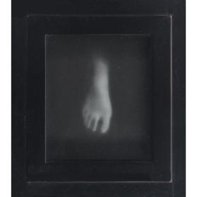 Untitled (Foot)